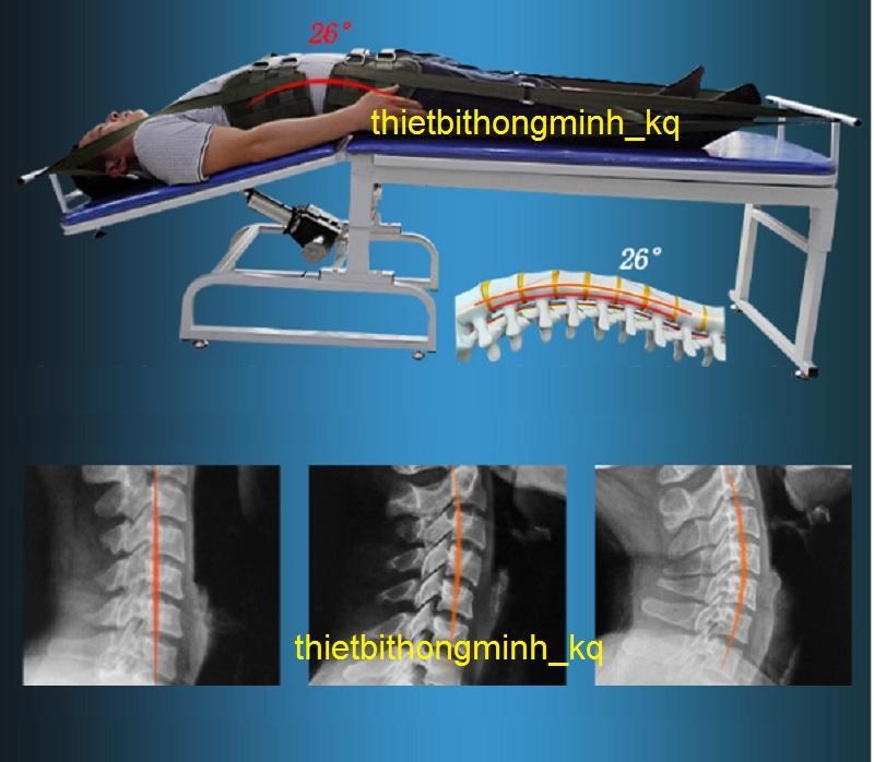 Hình ảnh Giường kéo giãn cột sống lưng cổ bằng điện 3 chiều 2 môtơ A999 1