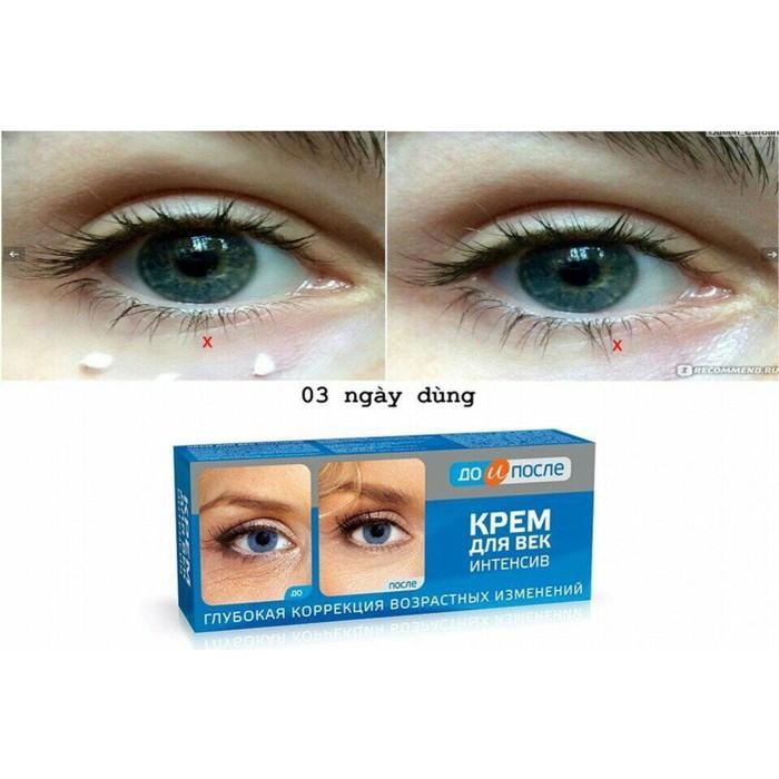 Kem ĐẶc TrỊ VẾt ChÂn Chim, NẾp NhĂn MẮt Kpem Eye Cream Insentive By Tuanlam79.